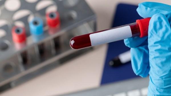 leucemia - sangue
