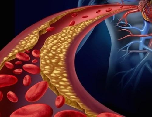 Análise identifica aterosclerose em mais de 40% de adultos sem doença cardíaca diagnosticada
