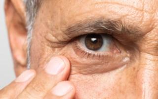 oftalmologia e alzheimer