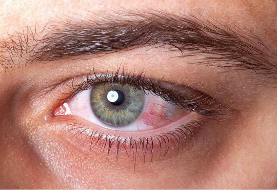Gereizte Augen nach dem Saunabesuch