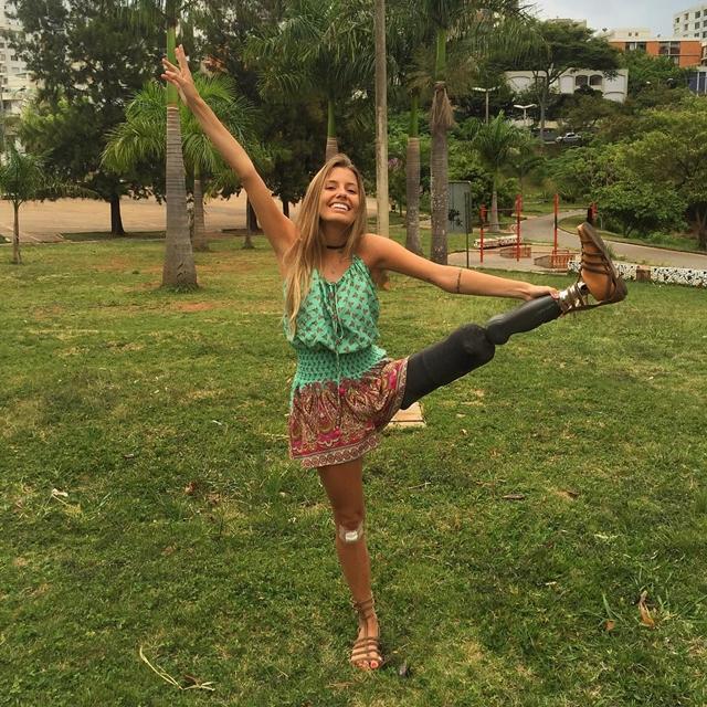 Paola je nasmejana i srećan iako je pre dve godine ostala bez leve noge (foto: Instagram)