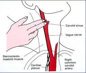 carotid-sinus