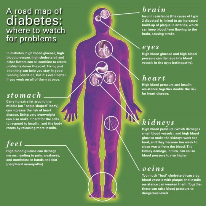 Complications of Diabetes Mellitus