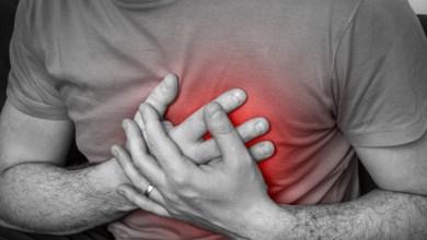 Photo of خفقان القلب .. متى يصبح مرضا ؟