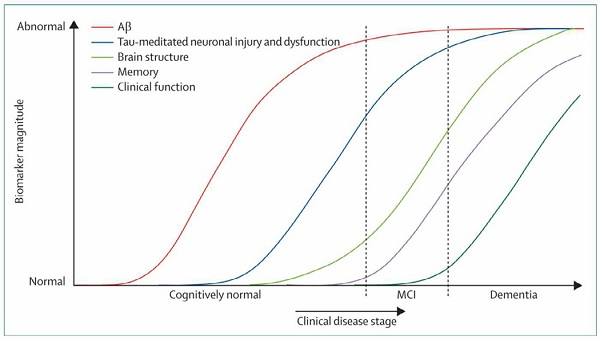 Model for AD disease progression (Credit: Michael et al./Alzheimers Dement.)