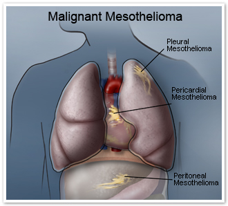 Different forms of mesothelioma