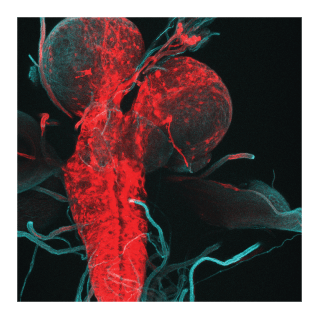 drosophila-larva-brain