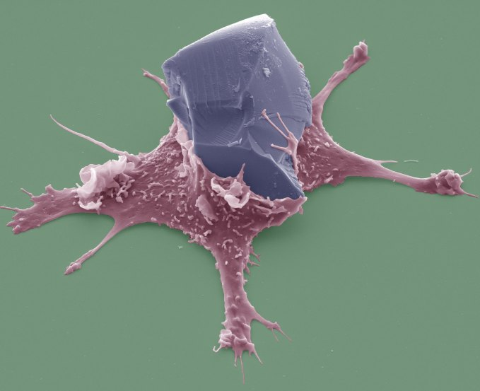 Phagocytosis@Renaud Poincloux