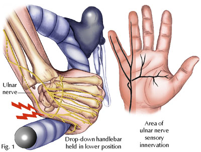 hand pain cycling
