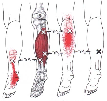 soleus trigger points