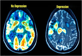 Depression shown in brain scan