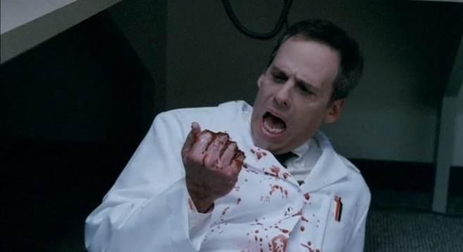 Dr. Godfrey (Josh Pais) got too handsy, now he's not so handsy, in Teeth (2007)