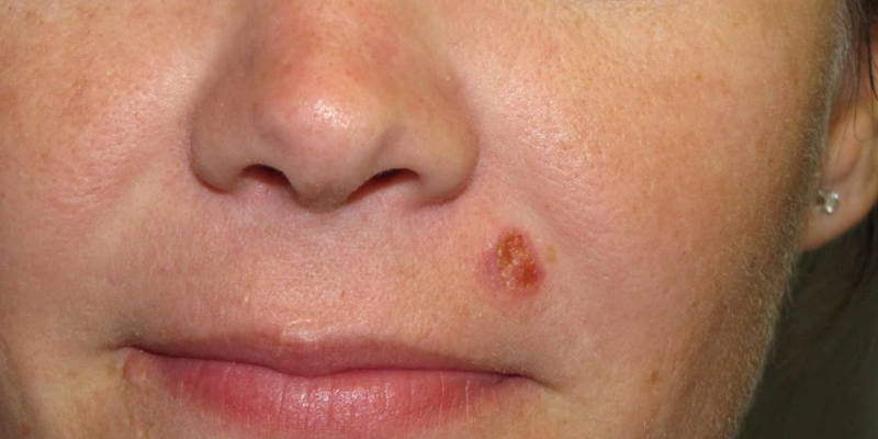 Early Stage Squamous Cell Carcinoma Nose