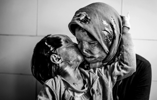 acid-attack-on-mother-and-child