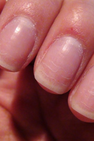 Growing my nails out – TRYING