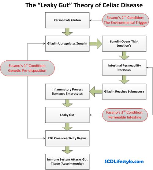 Leaky Gut Theory of Celiac Disease