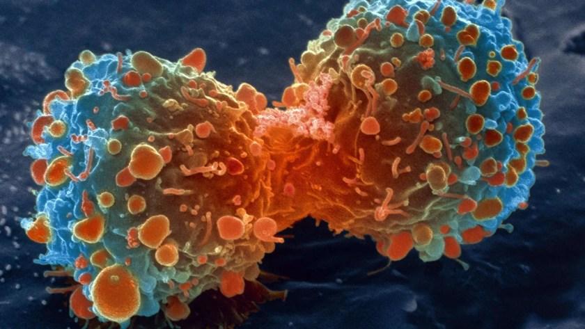 Cáncer. Cura del cáncer. Células cancerosas.
