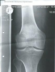 Das Röntgenbild meines rechten Knies