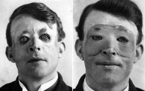 Walter Yeo had skin grafts performed by Gillies team during the First World War