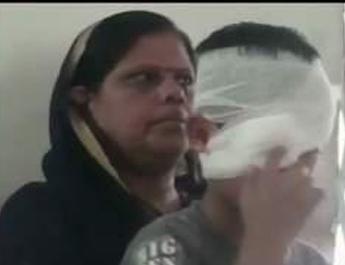 A Teacher Hurts the Class 2 Student, Eyesight is in Danger