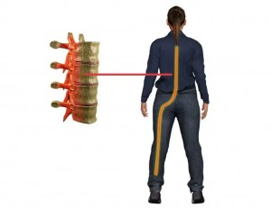 El Paso, TX Sciatica Pain Nerve Treatment