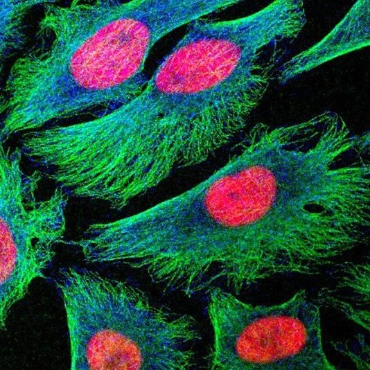 Human cancer cells in culture - Image: Matthew Daniels