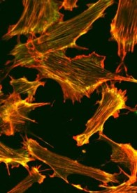 Fibroblastic reticular cells - showing two components of the cell's internal skeleton in green and red. The team can use these images to look at how the cells change shape.