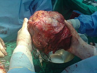 Splitting donated livers shown to be safe, allowing doctors to save 2 lives from single organ