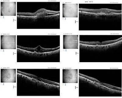 First oral agent to quell invasive macular degeneration, restore lost vision