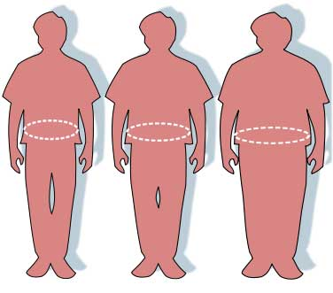 Birds of a feather: Obese among obese have high life satisfaction