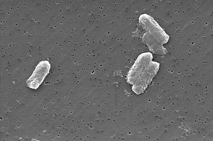 'Lonely' bacteria increase risk of antibiotic resistance