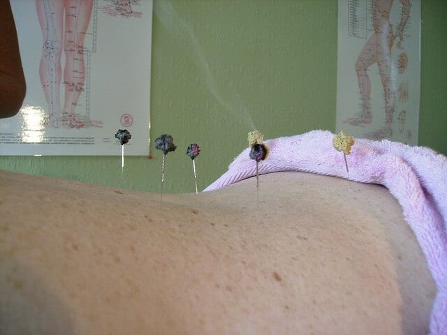 Bothered by hot flashes? Acupuncture might be the answer