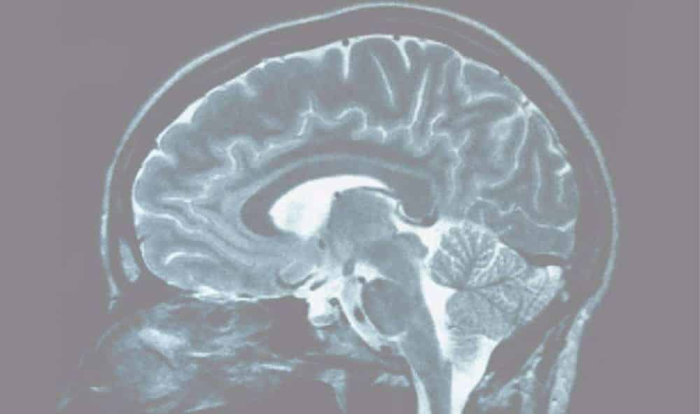 Stem cells help offset brain damage from stroke