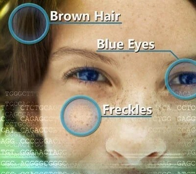 Researchers ID genes associated with sun sensitivity, freckles
