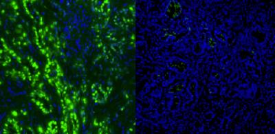 Breaking down cancer's defense mechanisms