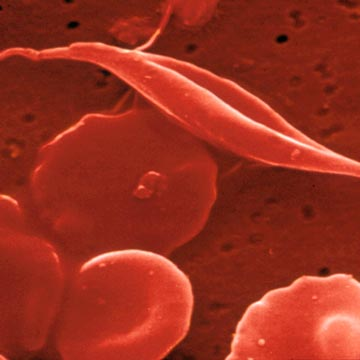 Researchers Study Therapy to Relieve Sickle Cell Pain