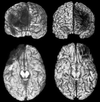 Arrested development: How brain damage impairs moral judgment