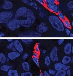 Skin cancer: A team synthesizes new drugs with surprising powers
