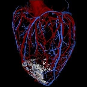Scientists regenerate heart muscle in primates