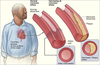 HIV-infected men at increased risk for heart disease