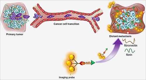 Tell-tale biomarker detects early breast cancer
