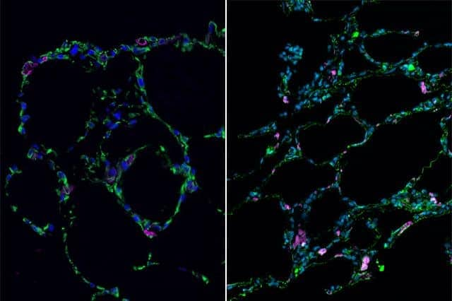 UCLA researchers use stem cells to grow 3-D lung-in-a-dish