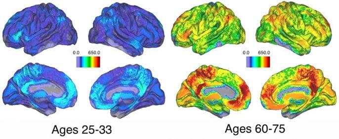 Brain's memory strategies change as you age