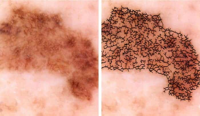 Researchers develop automated melanoma detector for skin cancer screening