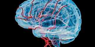 Stiff vessels, low blood flow in the brain forewarn of dementia