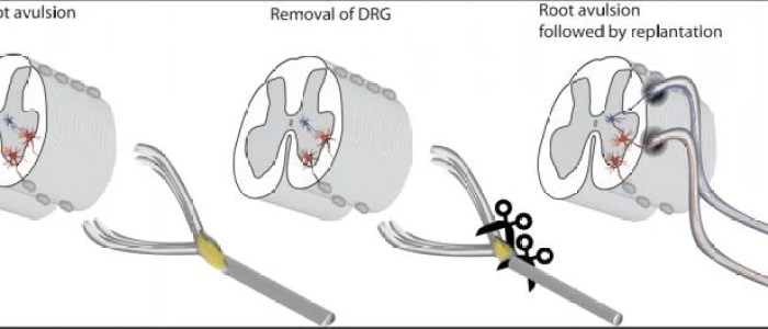 New surgical strategy offers hope for repairing spinal injuries
