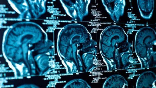 Electric scalp device prolongs survival in deadly brain cancer