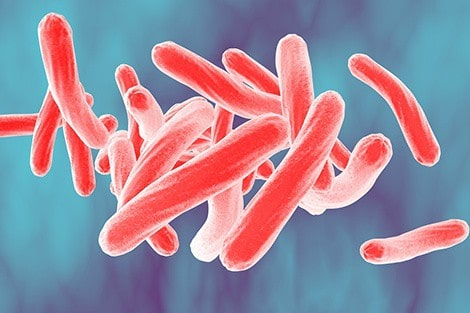 TB unlikely to be eliminated in U.S. anytime soon