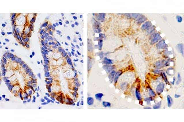 Study links ketone bodies with intestinal health