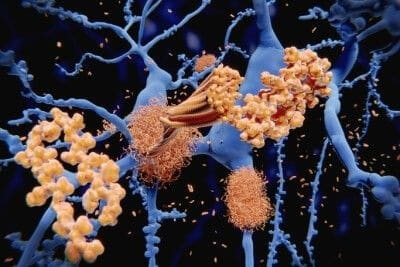 Blood test method may predict amyloid in brain, potentially indicating Alzheimer's